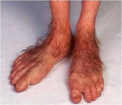 Bilderesultat for weird feet