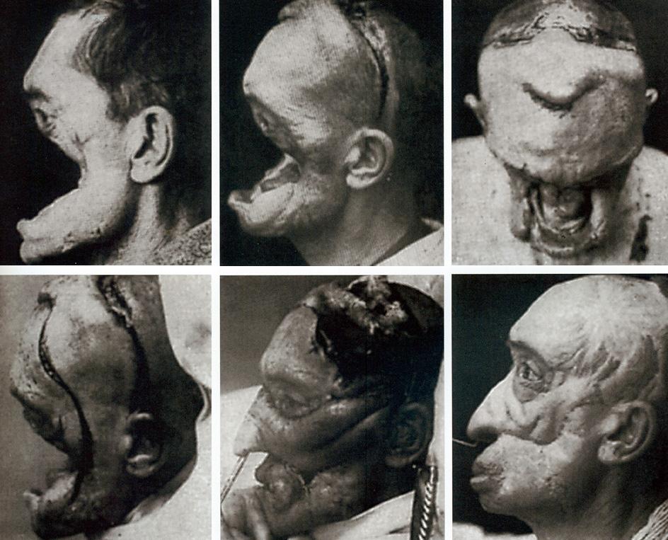 Facial reconstructive surgery burn victim sample